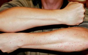The arms speak for themselves after a night exposed to Scottish biting midges.